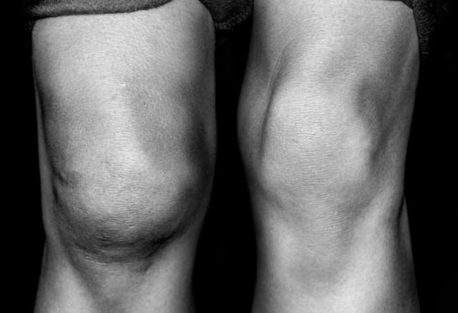 obraba kolena-oteklo koleno
